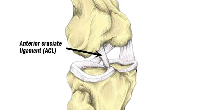 ACL Sprain